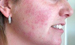 Lolli reccomend Is facial acne related to stds
