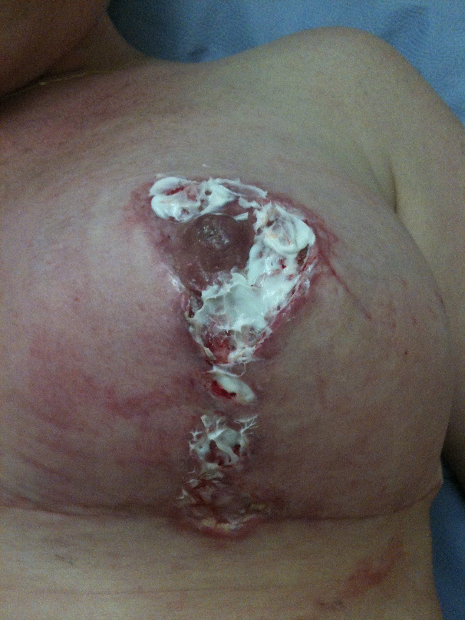 Kicks reccomend Breast lift complications picture