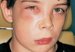 Doctor reccomend Right facial cellulitis