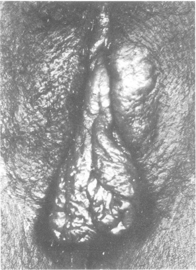 best of Photographs Large vulva