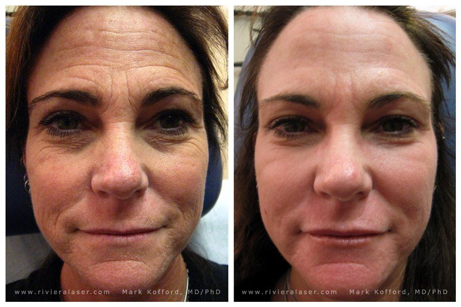 Tart reccomend Denver facial laser rejuvenation