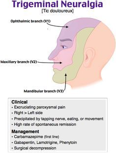 Mega reccomend Facial pain of left side
