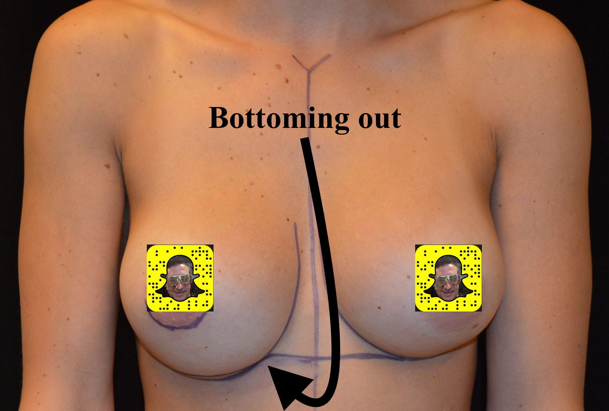 best of Lift complications picture Breast