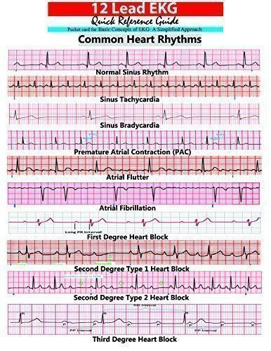 Snickers reccomend Heart rhythm strips pic