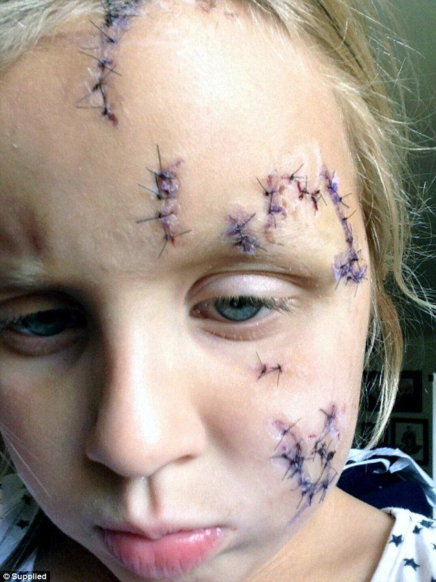 Facial injuries required stitches