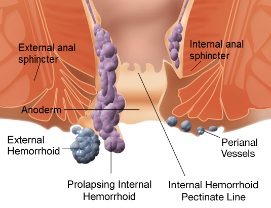 Sample anal sex with hemorrhoids