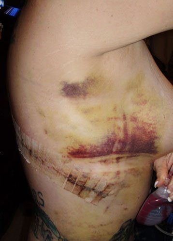 Breast lift complications picture