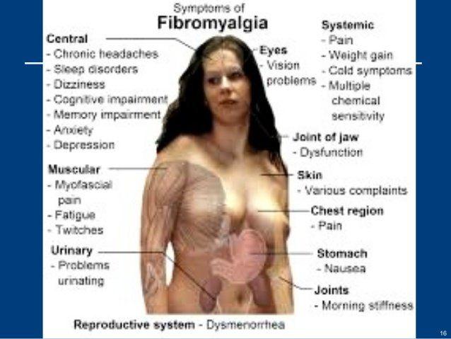best of Numbness fibromyalgia Facial