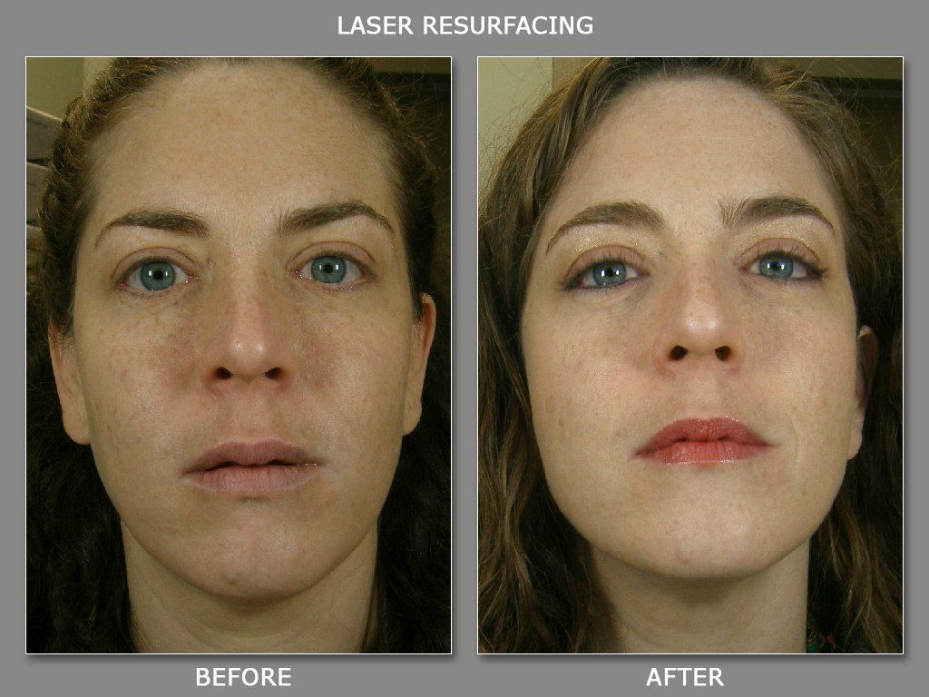 Denver facial laser rejuvenation