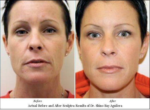 Half-Pipe reccomend Cosmetic facial fort lauderdale surgery