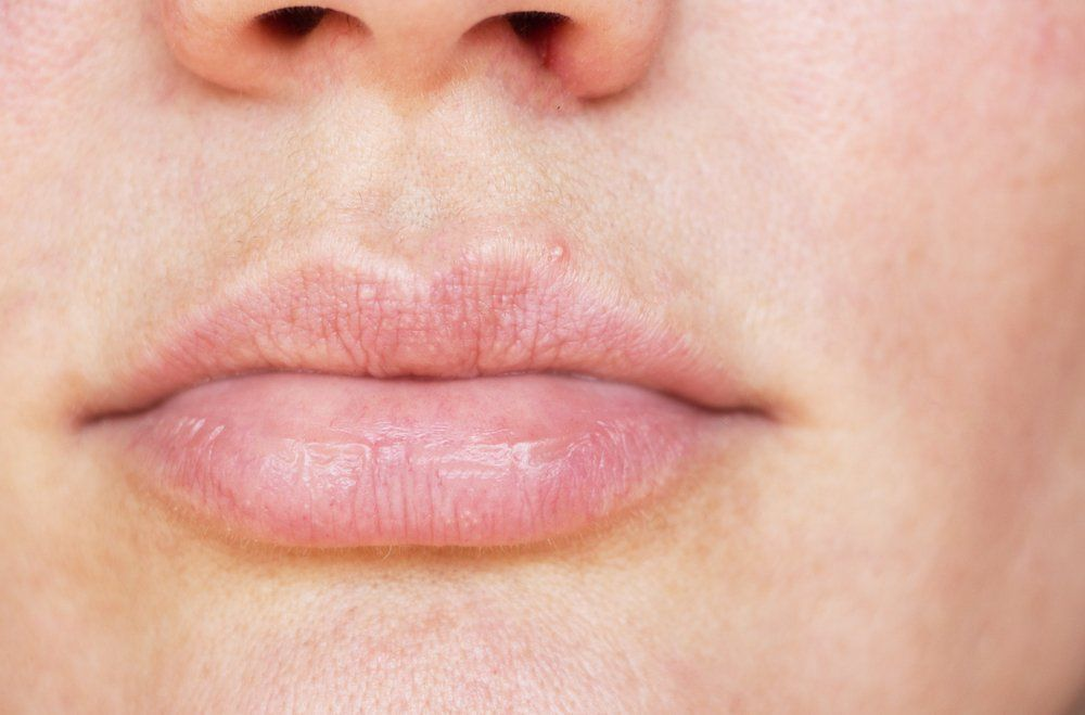 Is facial acne related to stds