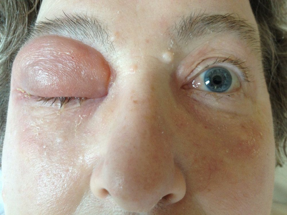 best of Cellulitis Right facial