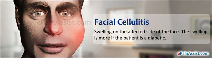Right facial cellulitis