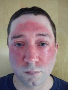 The T. reccomend Right facial cellulitis