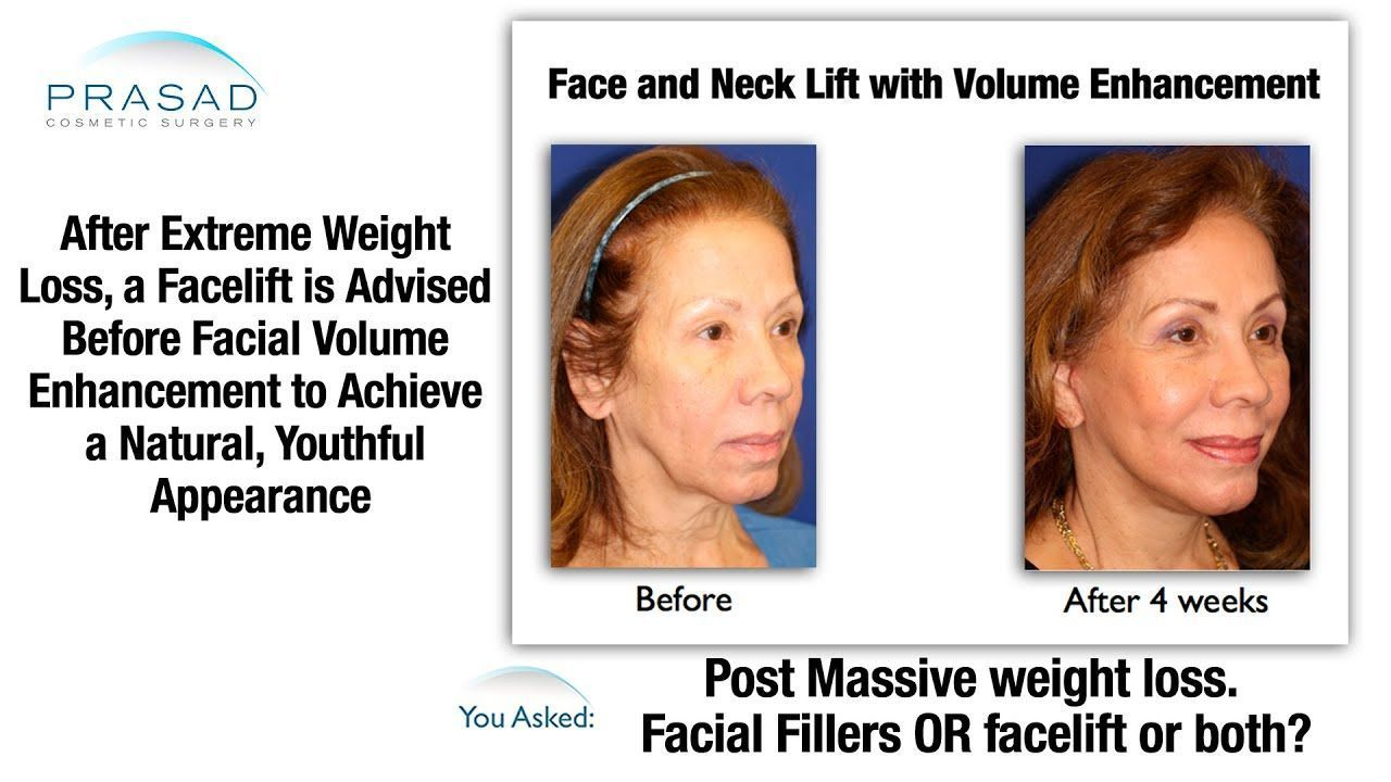 best of After Saggy loosing skin weight facial