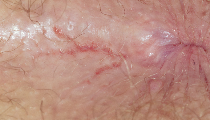 Skin fissures around anus