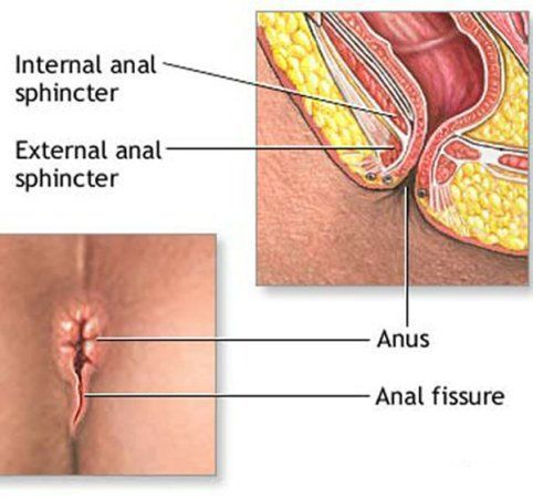 SWAT reccomend Skin fissures around anus