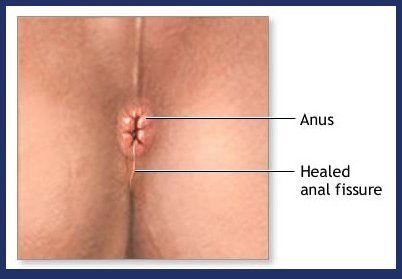 best of Fissures around anus Skin